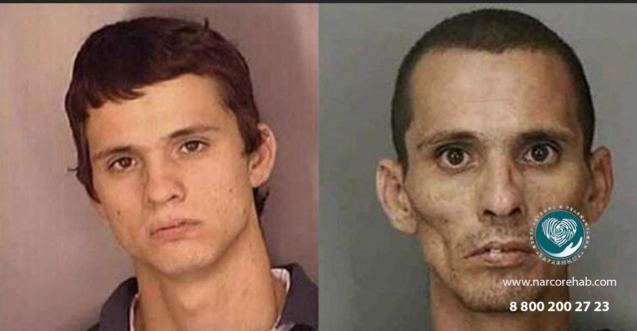 Внешние признаки наркомана: лицо, походка, поведение