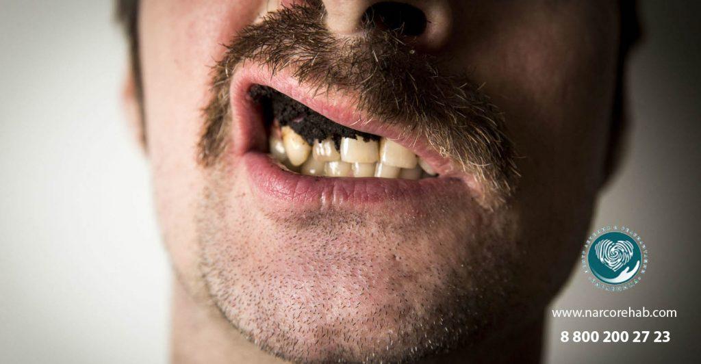 Насвай в зубах